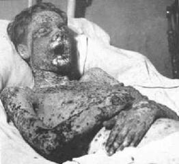 091202_Smallpox.png